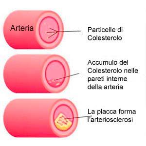 Accumulo di colesterolo nelle arterie
