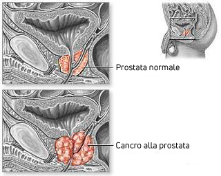 Cancro alla prostata grafico