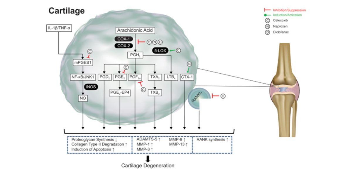 Degenerazione della cartilagine