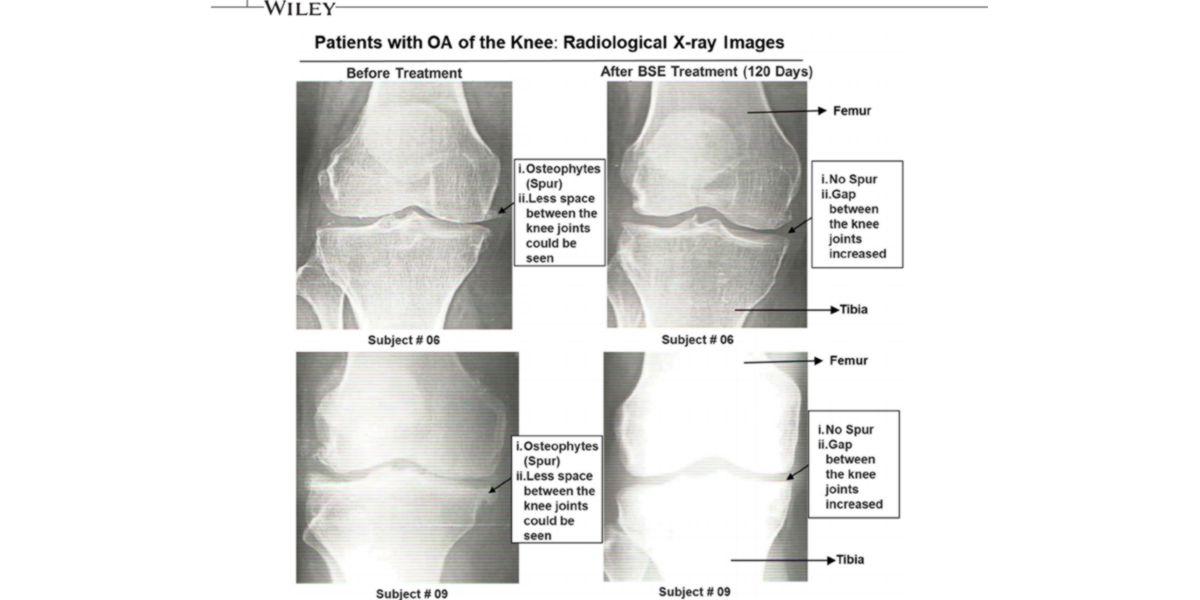 Miglioramento della cartilagine
