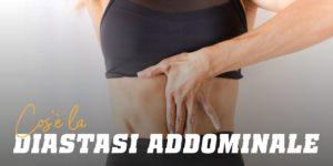 Cos'è la diastasi abdominale