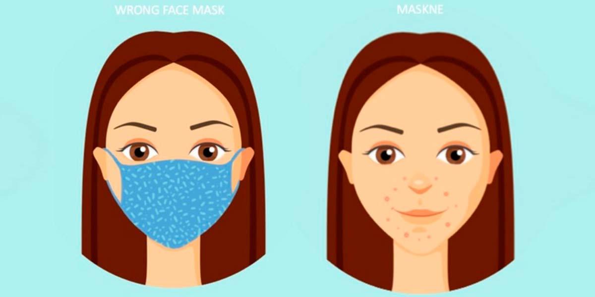 Maskne a causa della mascherina