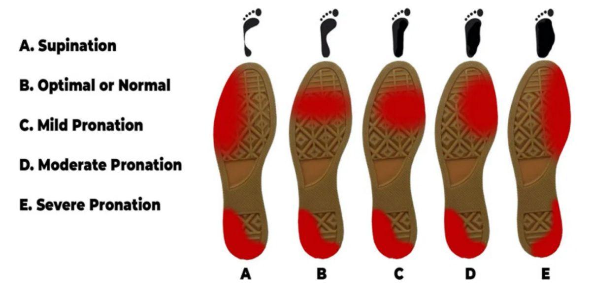 Usura delle scarpe da ginnastica