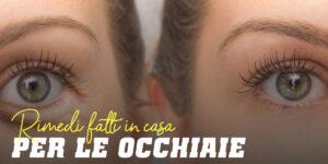 Occhiaie ti diciamo i migliori rimedi casalinghi
