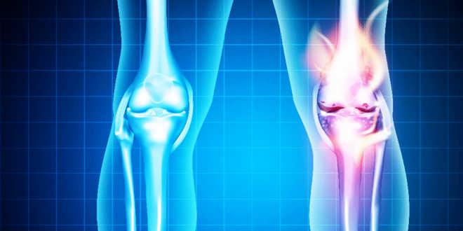 Cartilage de requin pour les articulations