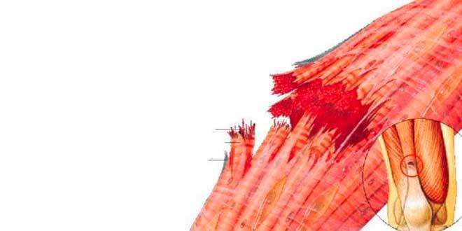 Micro rupture fibreuse