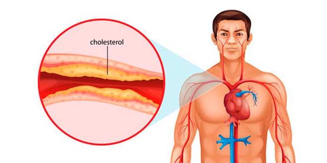 Obstruction artères