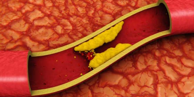 Problème de cholestérol