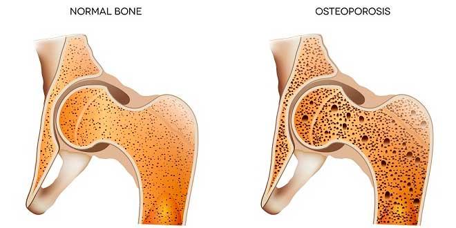 Os et ostéoporose