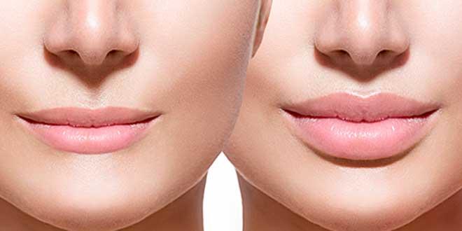 Acide hyaluronique pour les lèvres