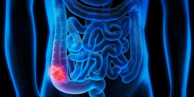 Dysbiose et flore intestinale