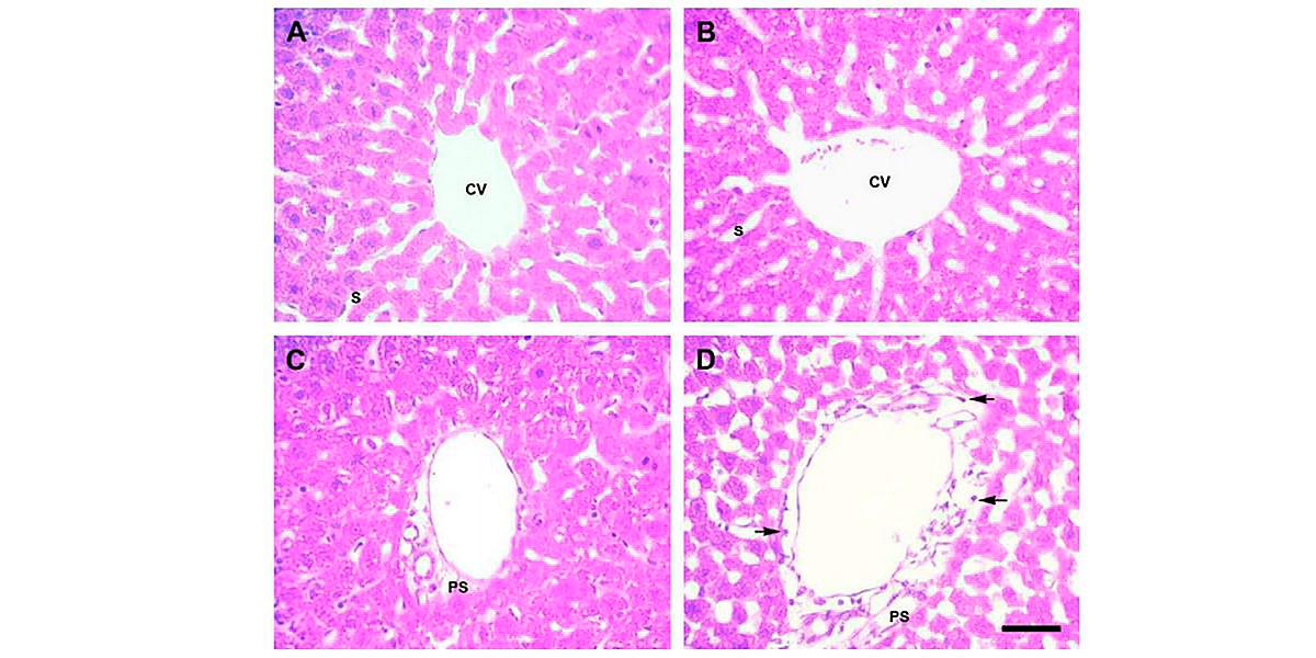 Lobe Hépatique