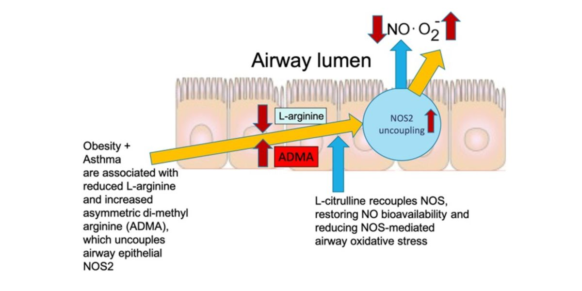 Stress oxydatif et asthme