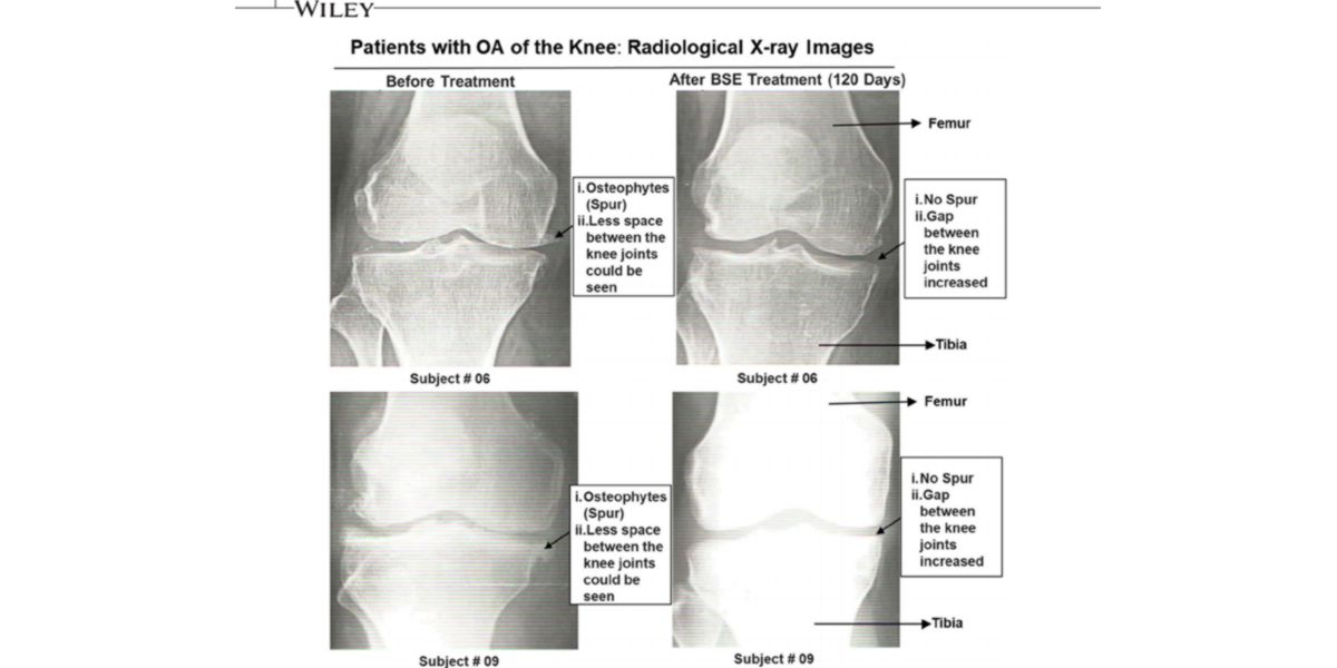 Amélioration du cartilage