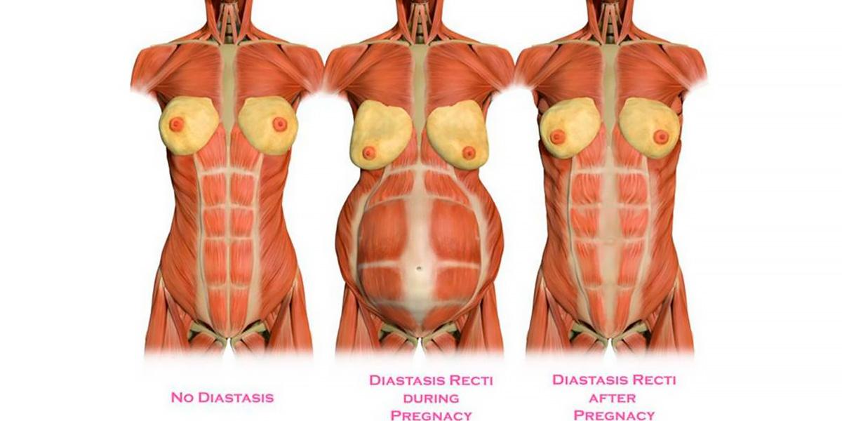 Grossesse et diastase abdominale
