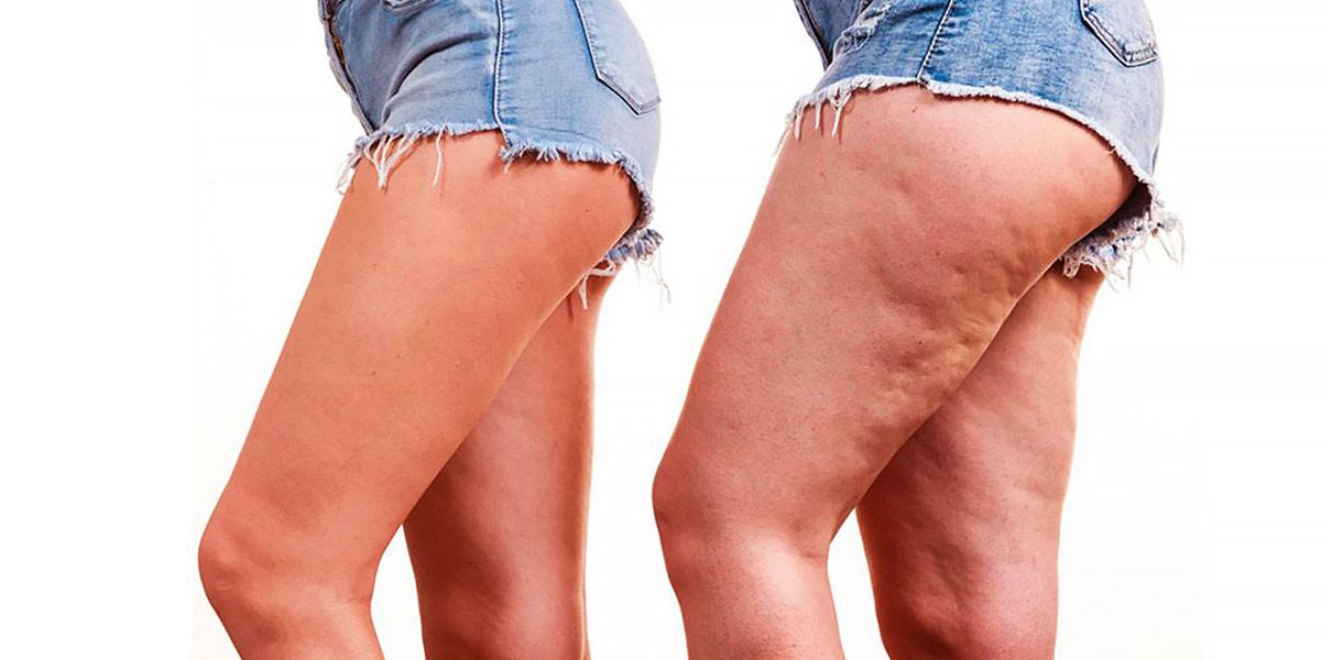 Cómo éviter la cellulite