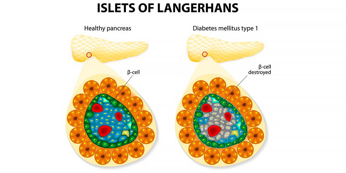 Diabète Type I