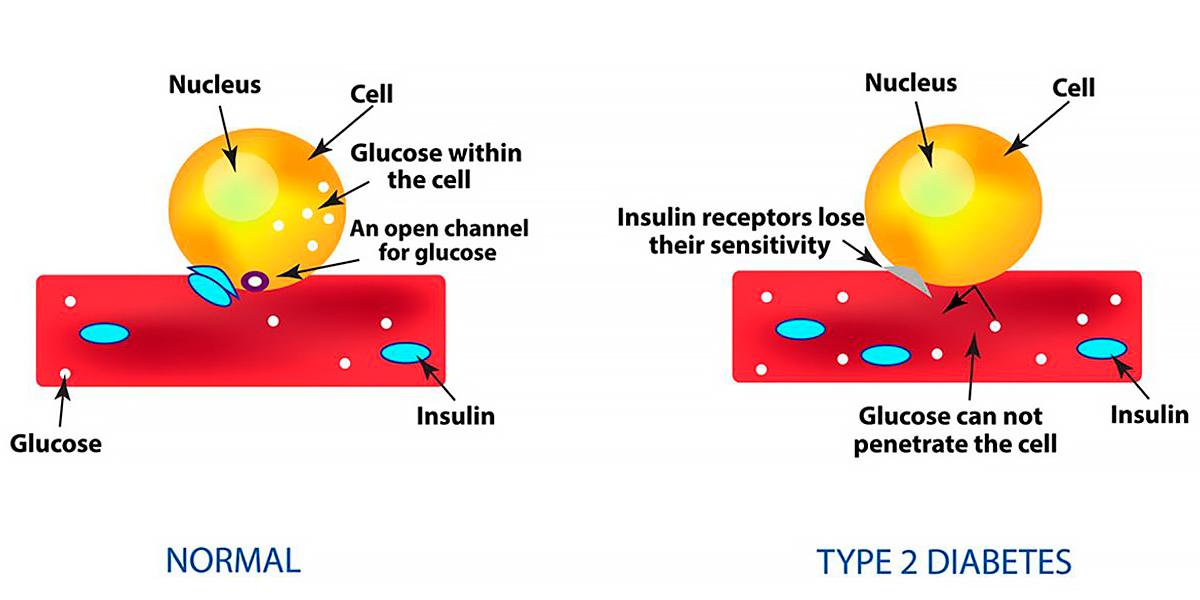 Diabète Type II