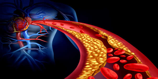 Krill against cholesterol