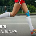 Runners knee syndrome