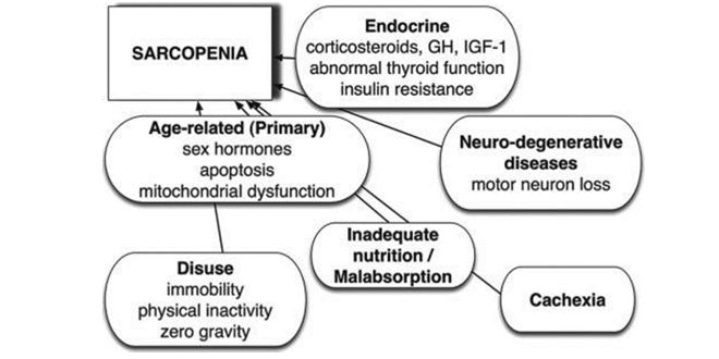 Sarcopenia causes