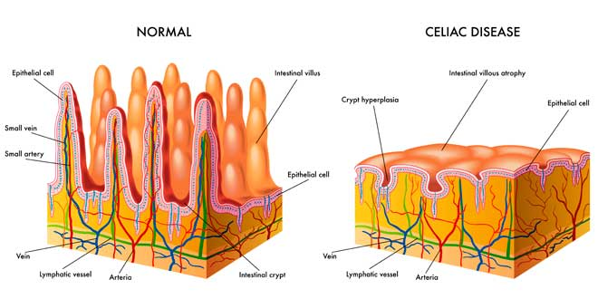 Normal vs Celiac disease