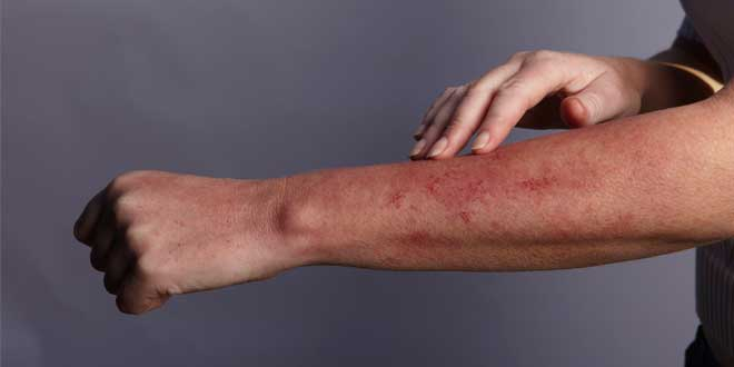 Skin rash allergy