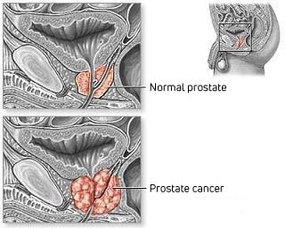 Prostate anatomical drawing