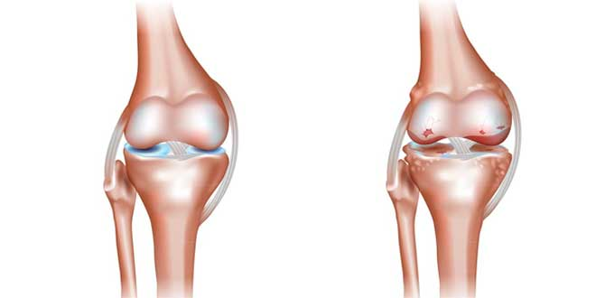 Healthy joint VS Joints affected by osteoarthritis