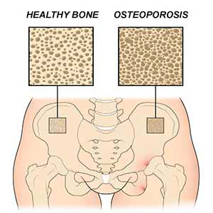 Maca for osteoporosis