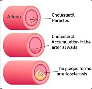 Beta-glucans against cholesterol