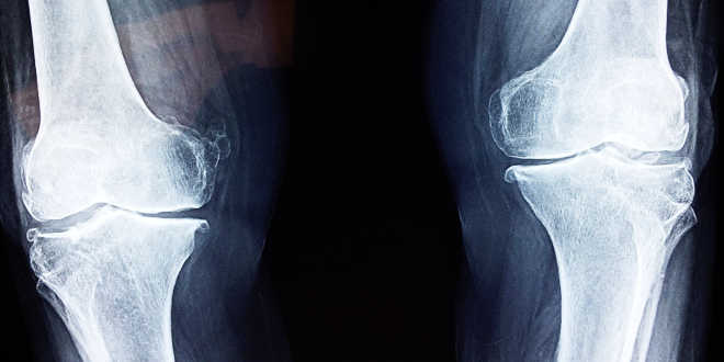 Bone radiography