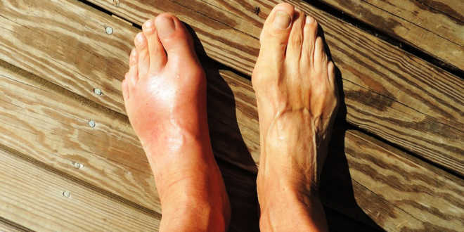 The effects of devil's claw on gout