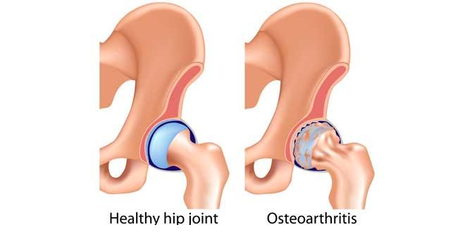 Healthy hip joint vs osteoarthritis