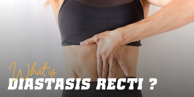 Diastasis Recti: What it is, How to Prevent it and False Myths
