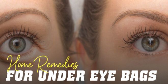 A Look at Dark Eye Circles: We tell you the Best Home Remedies