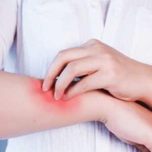 Dermatitis – Causas, tipos y cómo tratar dicha afección de la piel